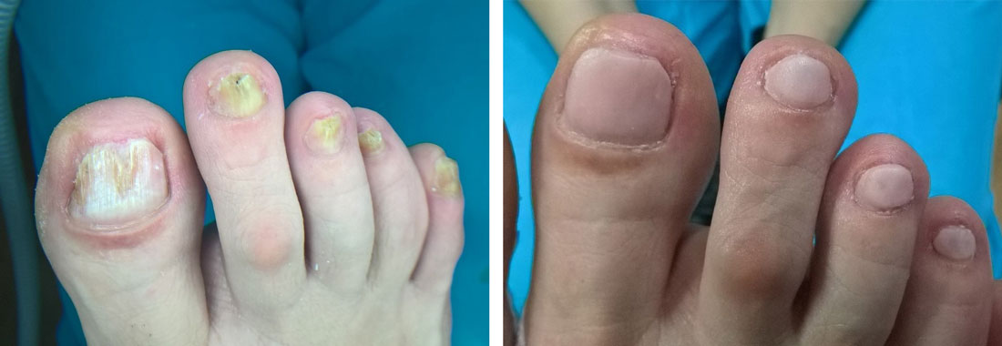 Dystroficzne paznokcie (przed i po zabiegu)
