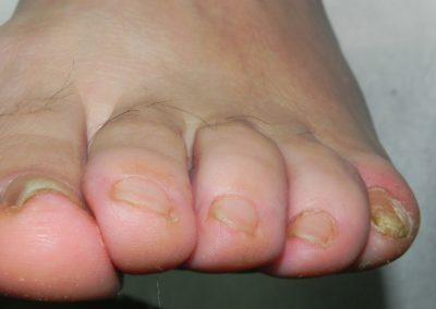 wrastające paznokci