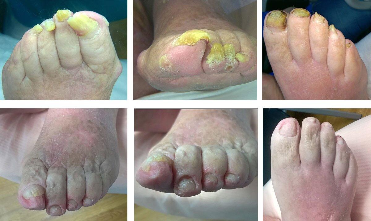 Onychogryfoza (Onychogryphosis), dystrofia paznokci (przed i po zabiegu)