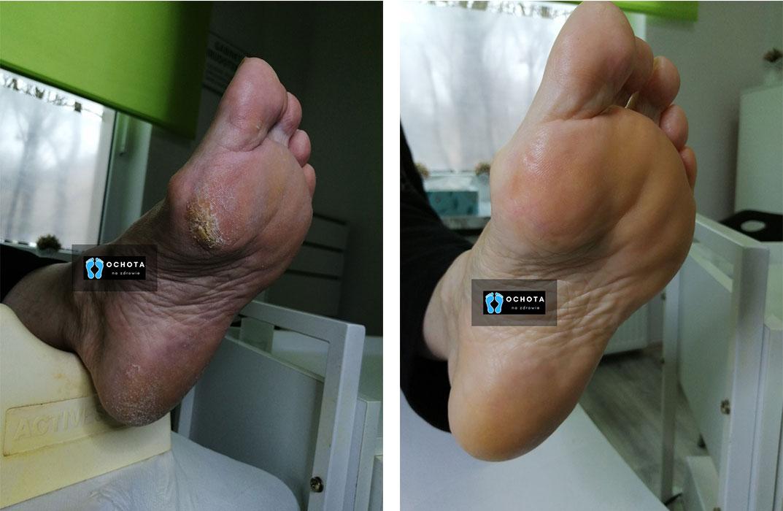 Usunięcie modzeli (przed i po zabiegu)