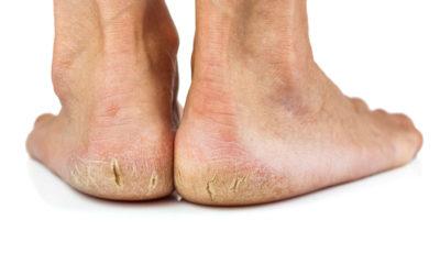 Zabieg na pękające pięty