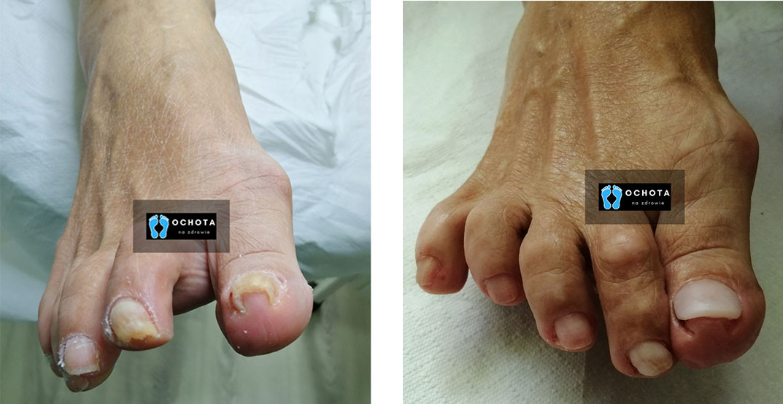 wrastające paznokcie warszawa