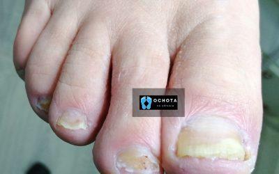 Łuszczyca paznokci (Psoriasis)