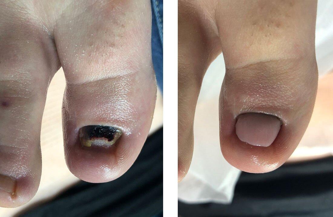 Paznokieć palucha po wielu zabiegach chirurgicznych (przed i po zabiegu)