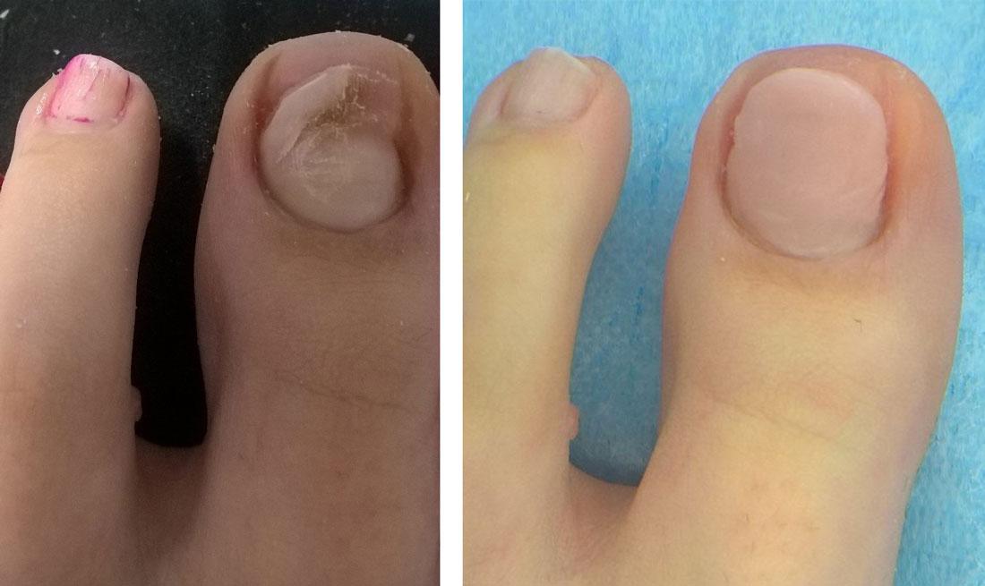 Rekonstrukcja paznokcia palucha po mechanicznym urazie (przed i po zabiegu)