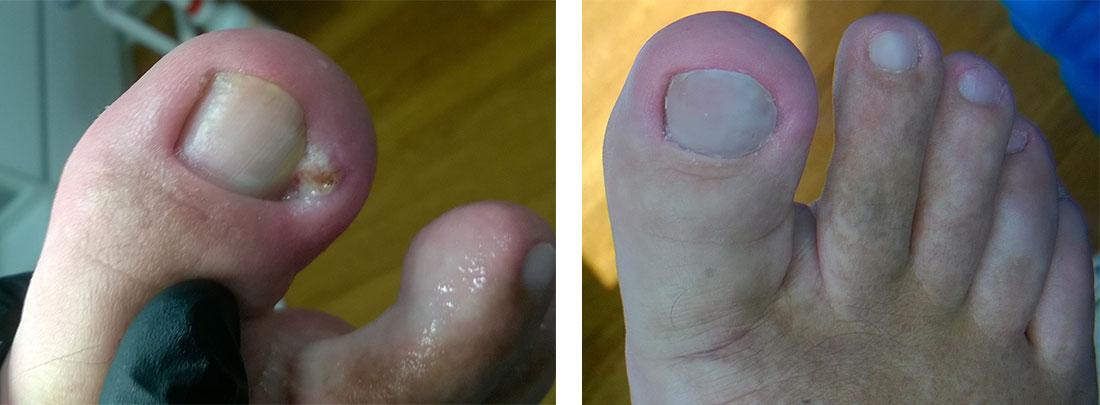 wrastajace paznokcie warszawa