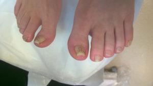 leczenie wrastających paznokci warszawa