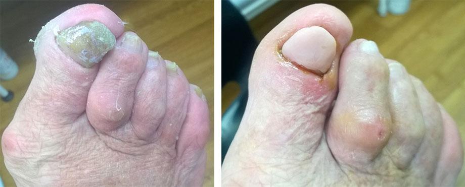 paznokcie hiperkeratotyczne w wyniku infekcji grzybiczej